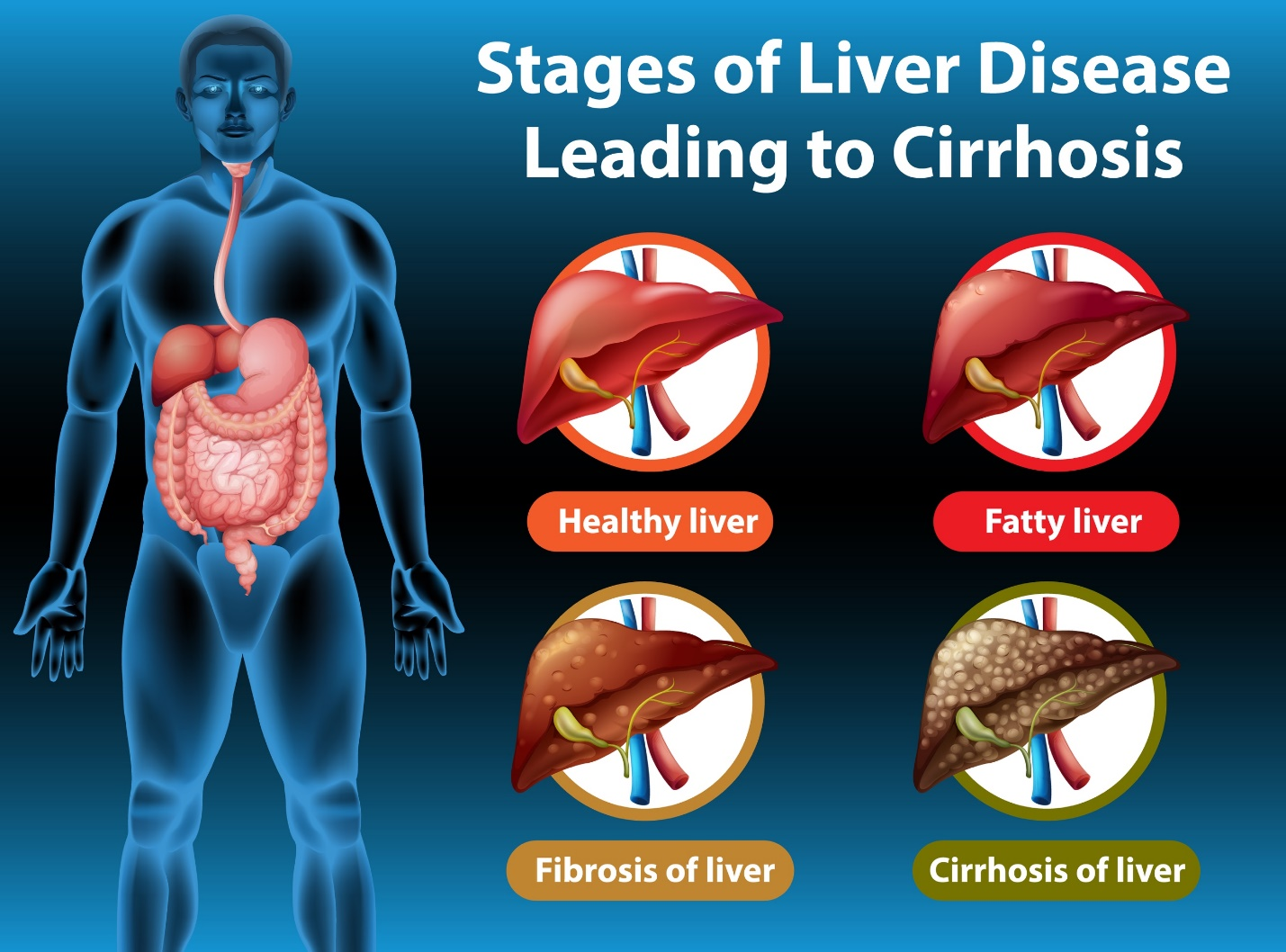 Keto Diet for Fatty Liver Disease: All You Need to Know About NAFLD Bariatric Station